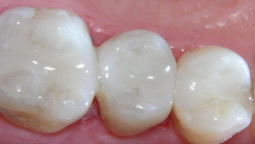Teeth w/ Tooth Colored Fillings