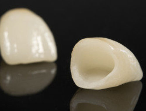 What You Need to Know About Dental Bridges