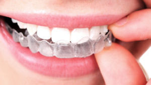 Invisalign Dentist Near Me Dr. Jaclyn Rickoff, DDS
