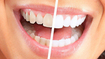 Before & After Whitening Photo